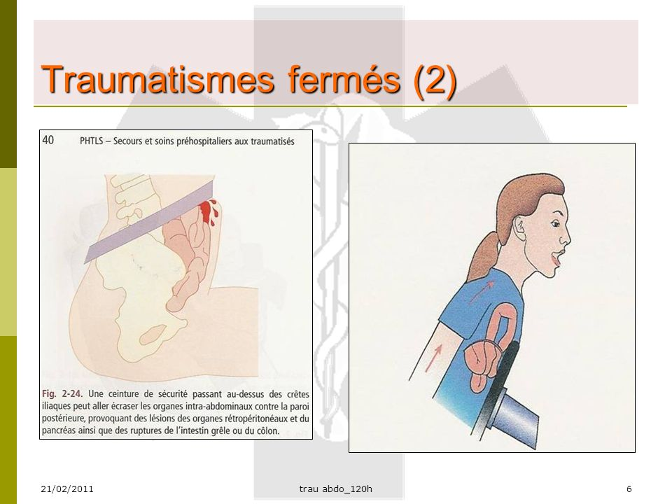 21/02/2011trau abdo_120h17 Lésions urogénitales (1)  Reins, vessie, jonctions  Organes masculins, féminins