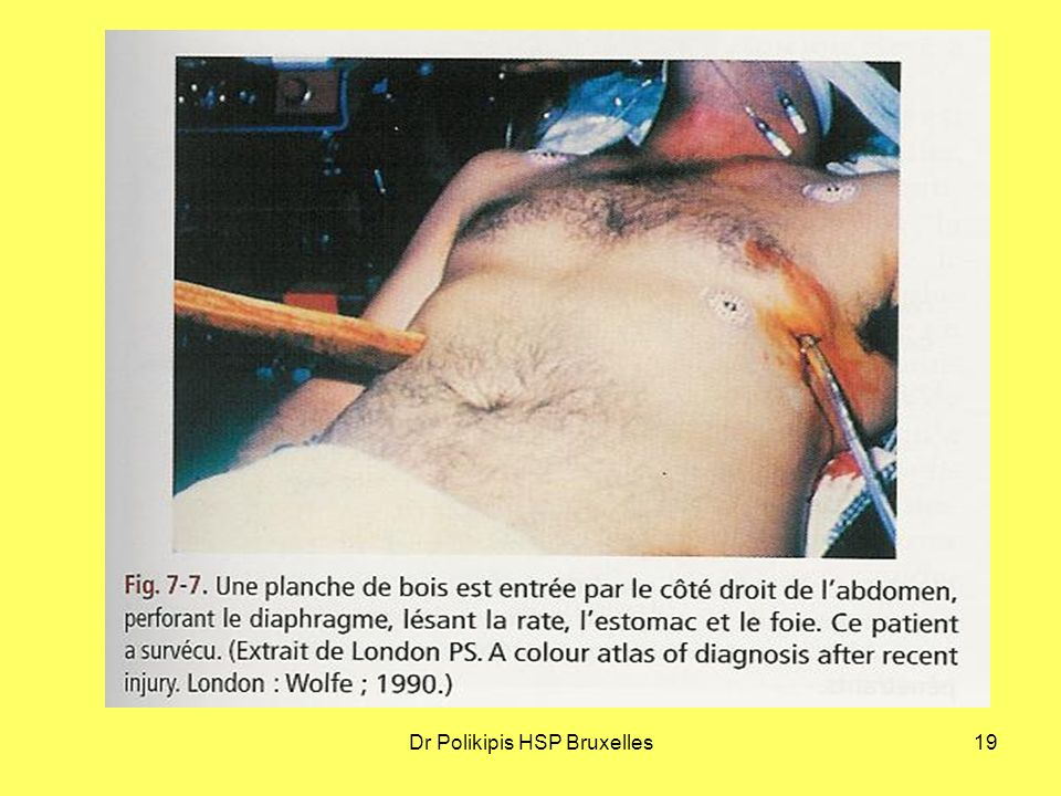 Dr Polikipis HSP Bruxelles19