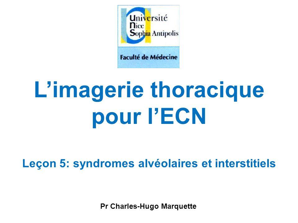 Pr Charles-Hugo Marquette L'imagerie thoracique pour l'ECN Leçon 5: syndromes alvéolaires et interstitiels