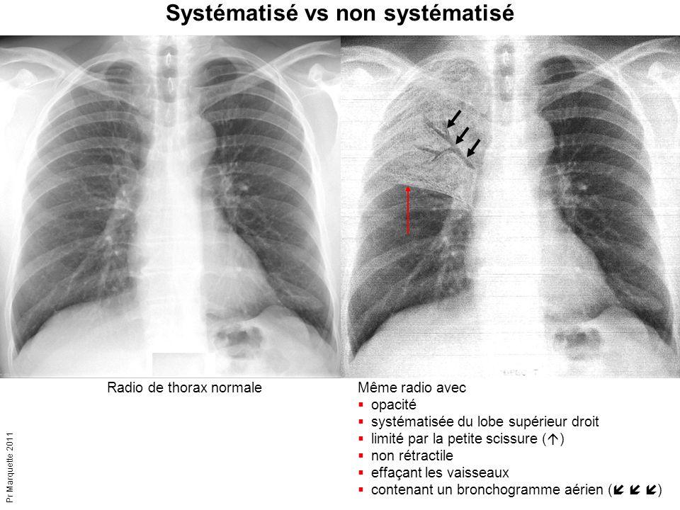 Pr Marquette 2011 Systématisé vs non systématisé Même radio avec  opacité  systématisée du lobe supérieur droit  limité par la petite scissure ( 