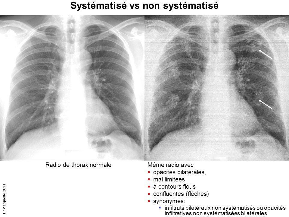 Pr Marquette 2011 Radio de thorax normaleMême radio avec  opacités bilatérales,  mal limitées  à contours flous  confluentes (flèches)  synonymes