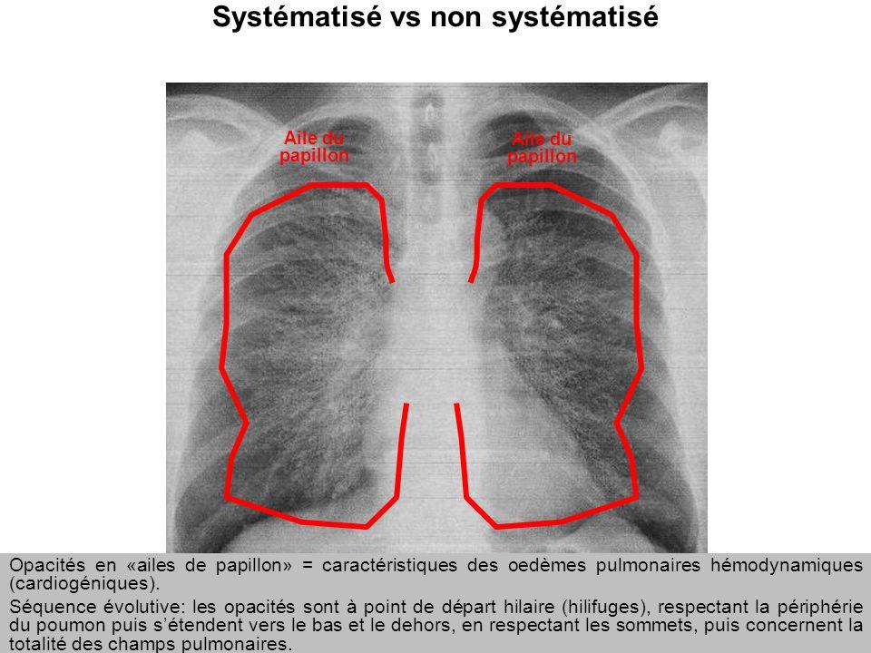 Pr Marquette 2011 Systématisé vs non systématisé Aile du papillon Opacités en «ailes de papillon» = caractéristiques des oedèmes pulmonaires hémodynam