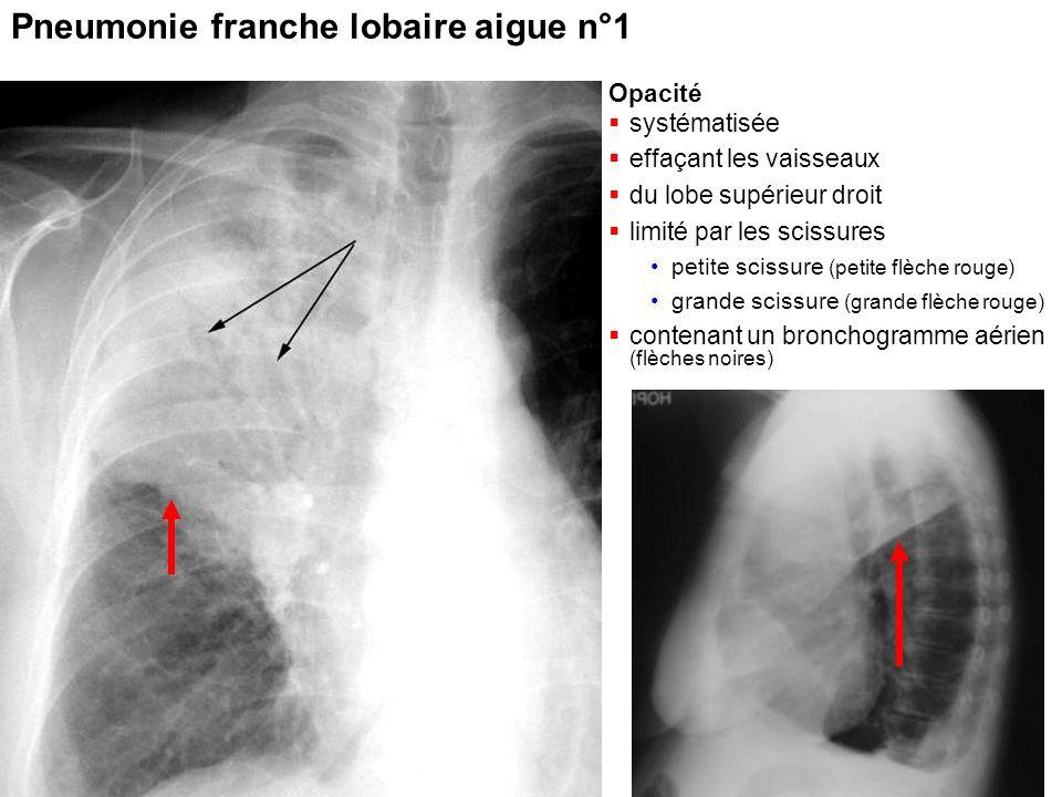 Pr Marquette 2011 Pneumonie franche lobaire aigue n°1 Opacité  systématisée  effaçant les vaisseaux  du lobe supérieur droit  limité par les sciss