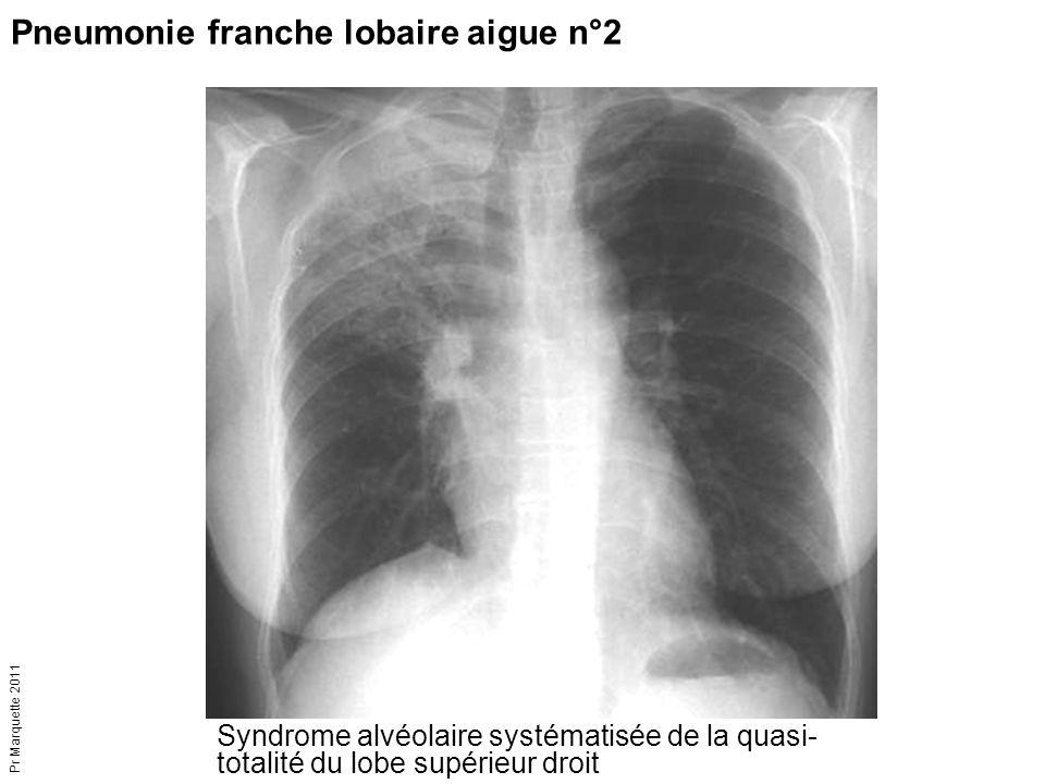 Syndrome alvéolaire systématisée de la quasi- totalité du lobe supérieur droit Pneumonie franche lobaire aigue n°2 Pr Marquette 2011