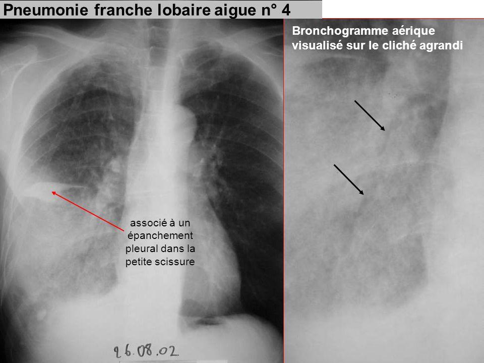 Bronchogramme aérique visualisé sur le cliché agrandi Pneumonie franche lobaire aigue n° 4 associé à un épanchement pleural dans la petite scissure