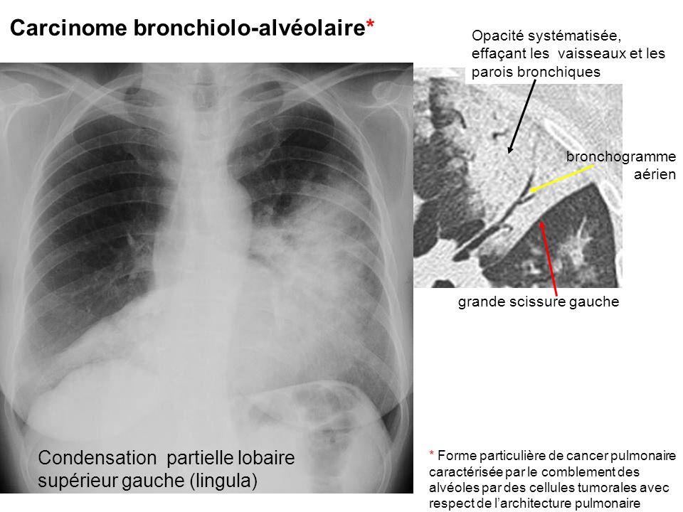 Carcinome bronchiolo-alvéolaire* Opacité systématisée, effaçant les vaisseaux et les parois bronchiques bronchogramme aérien grande scissure gauche Co