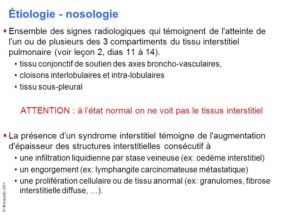 Pr Marquette 2011  Ensemble des signes radiologiques qui témoignent de l'atteinte de l'un ou de plusieurs des 3 compartiments du tissu interstitiel p