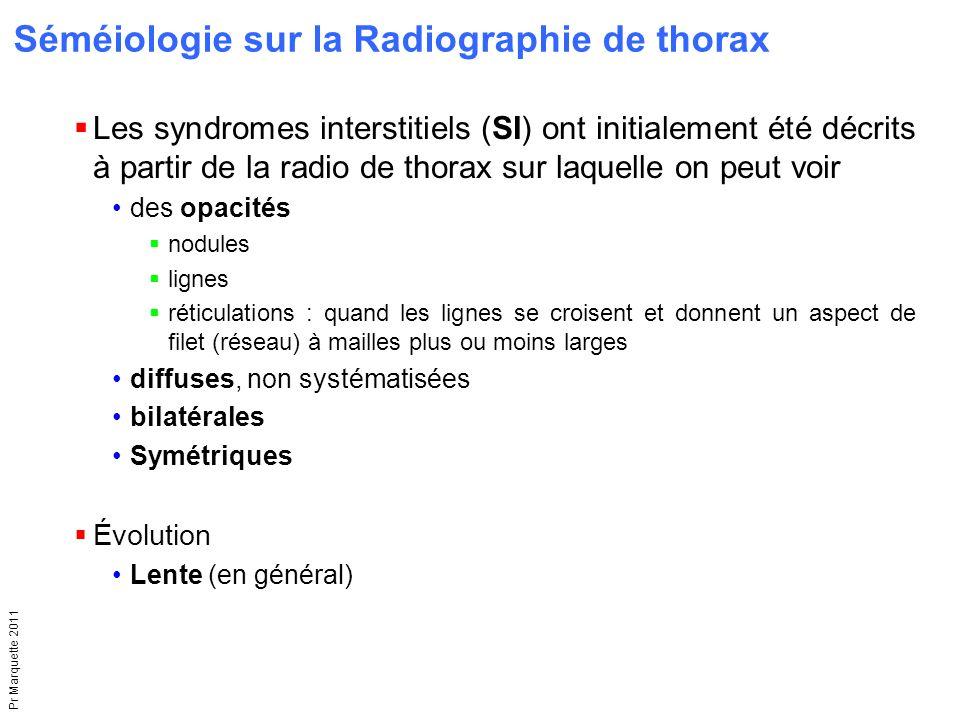 Pr Marquette 2011  Les syndromes interstitiels (SI) ont initialement été décrits à partir de la radio de thorax sur laquelle on peut voir des opacité