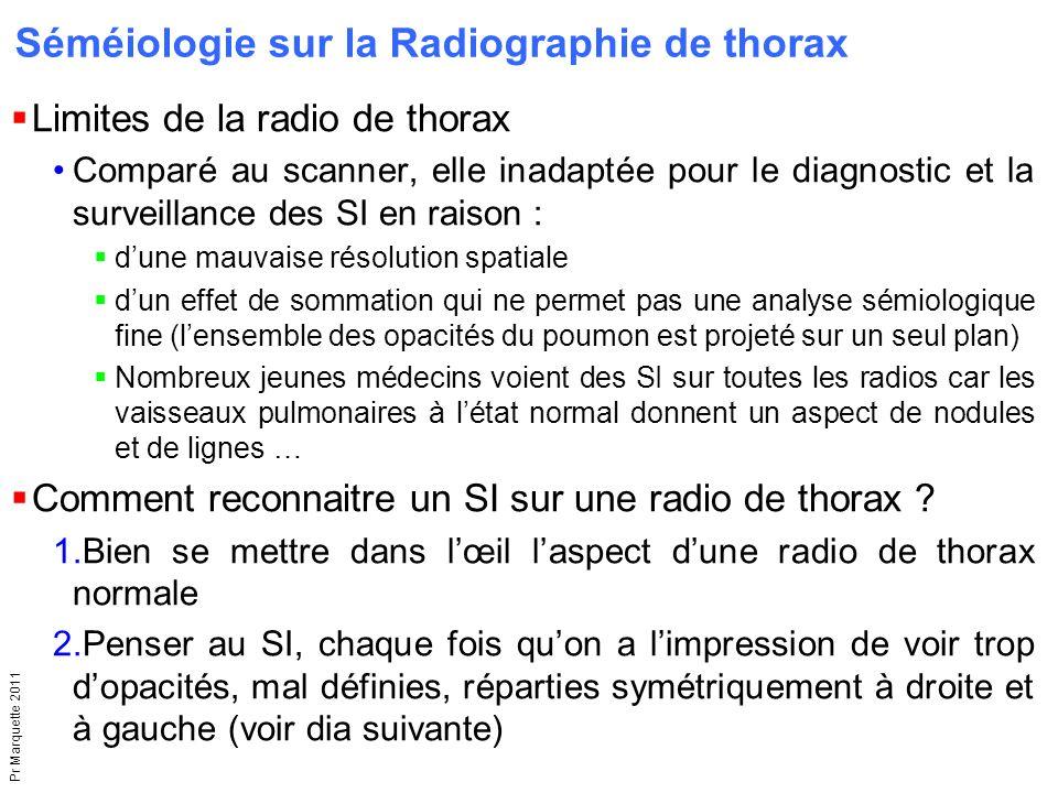 Pr Marquette 2011  Limites de la radio de thorax Comparé au scanner, elle inadaptée pour le diagnostic et la surveillance des SI en raison :  d'une