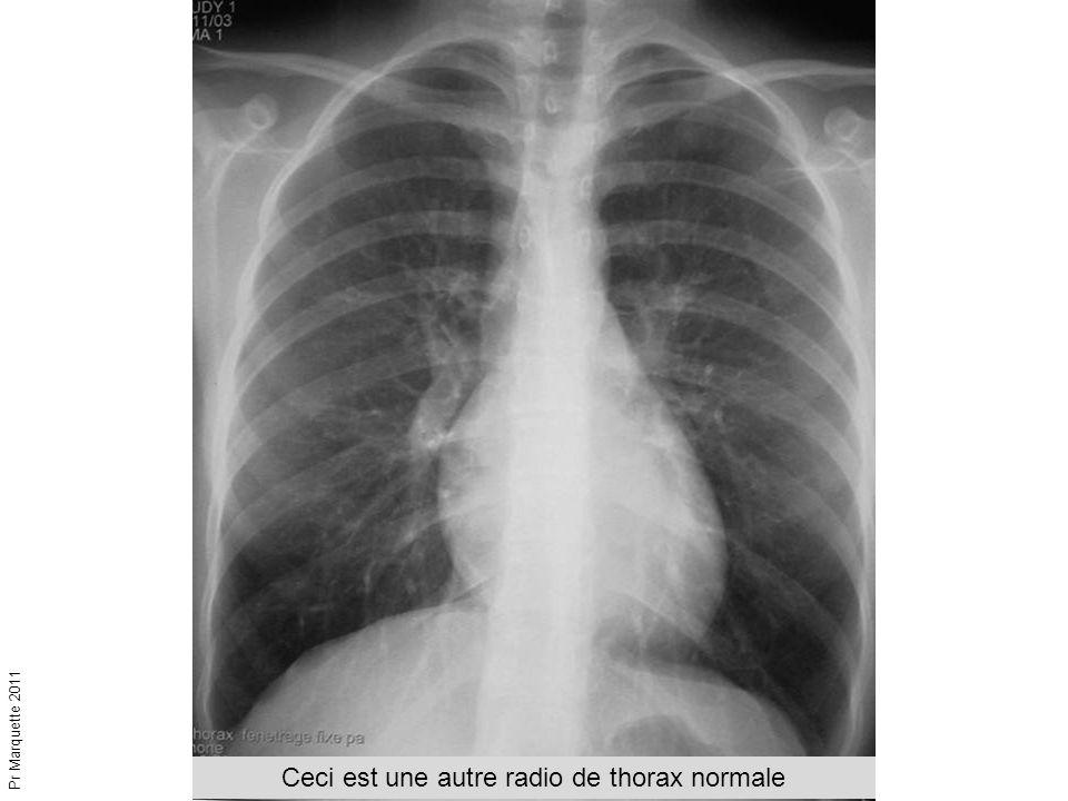 Ceci est une autre radio de thorax normale Pr Marquette 2011