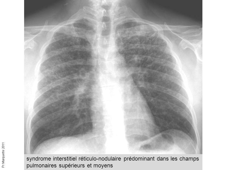 syndrome interstitiel réticulo-nodulaire prédominant dans les champs pulmonaires supérieurs et moyens Pr Marquette 2011