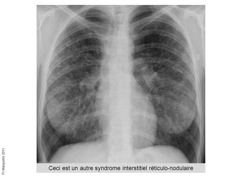 Ceci est un autre syndrome interstitiel réticulo-nodulaire Pr Marquette 2011