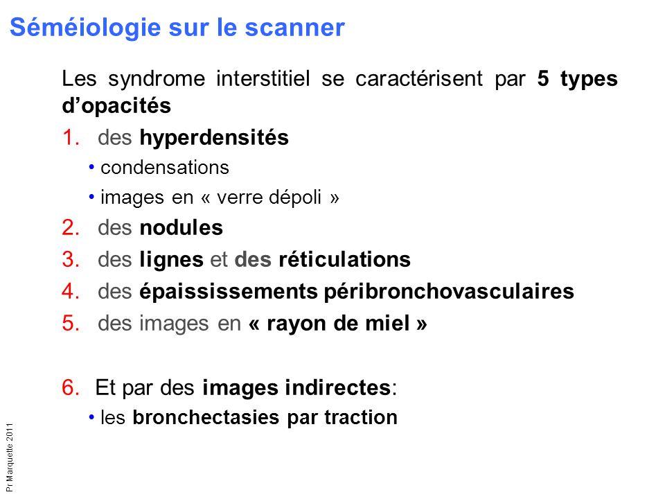 Pr Marquette 2011 Les syndrome interstitiel se caractérisent par 5 types d'opacités 1.des hyperdensités condensations images en « verre dépoli » 2.des