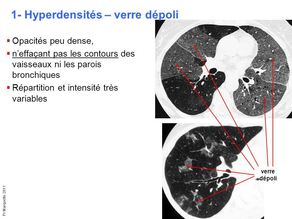 Pr Marquette 2011  Opacités peu dense,  n'effaçant pas les contours des vaisseaux ni les parois bronchiques  Répartition et intensité très variable