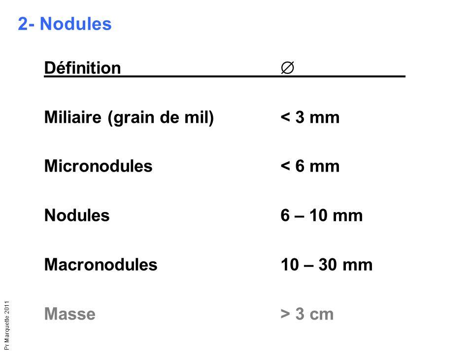 Pr Marquette 2011 Définition  Miliaire (grain de mil)< 3 mm Micronodules< 6 mm Nodules6 – 10 mm Macronodules10 – 30 mm Masse> 3 cm 2- Nodules