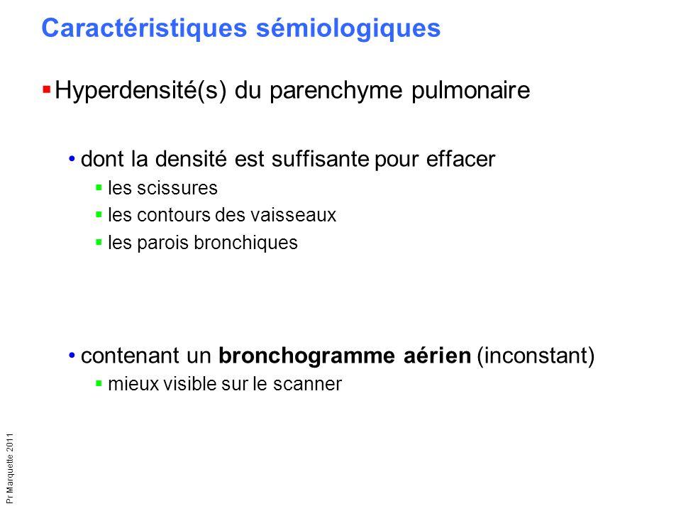Pr Marquette 2011 Caractéristiques sémiologiques  Hyperdensité(s) du parenchyme pulmonaire dont la densité est suffisante pour effacer  les scissure