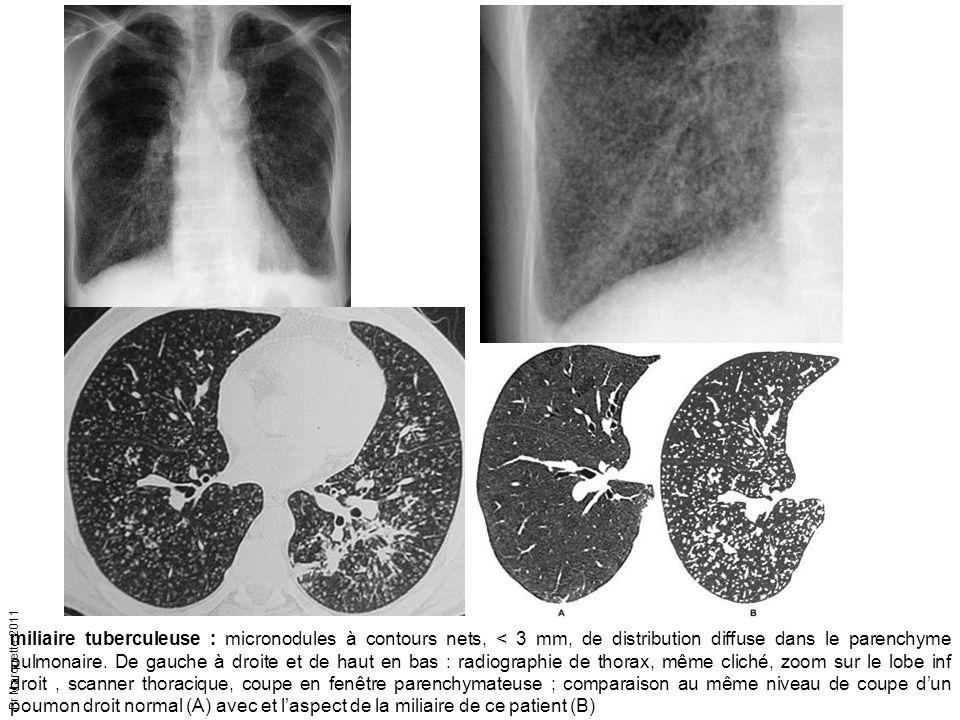 Pr Marquette 2011 miliaire tuberculeuse : micronodules à contours nets, < 3 mm, de distribution diffuse dans le parenchyme pulmonaire. De gauche à dro