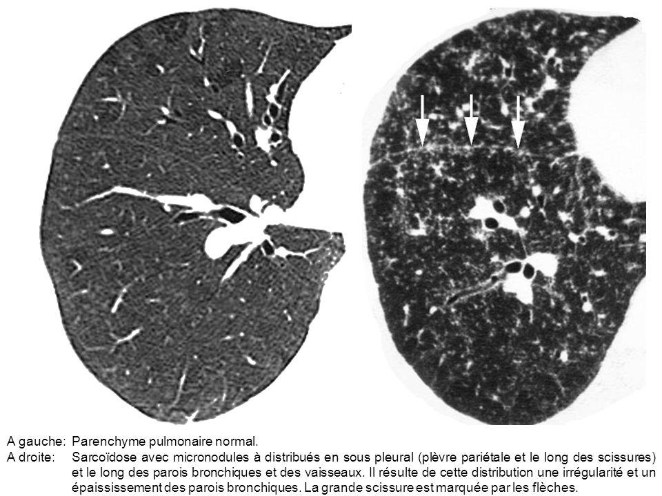 A gauche:Parenchyme pulmonaire normal. A droite:Sarcoïdose avec micronodules à distribués en sous pleural (plèvre pariétale et le long des scissures)