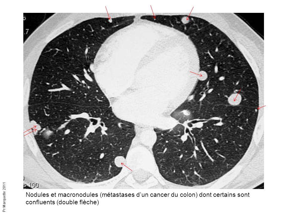 Pr Marquette 2011 Nodules et macronodules (métastases d'un cancer du colon) dont certains sont confluents (double flèche)