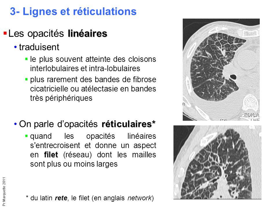 Pr Marquette 2011 3- Lignes et réticulations linéaires  Les opacités linéaires traduisent  le plus souvent atteinte des cloisons interlobulaires et