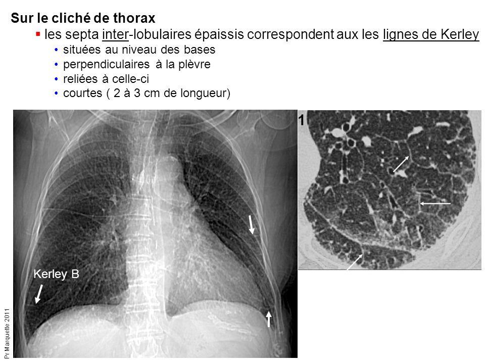 Pr Marquette 2011 Kerley B Sur le cliché de thorax  les septa inter-lobulaires épaissis correspondent aux les lignes de Kerley situées au niveau des