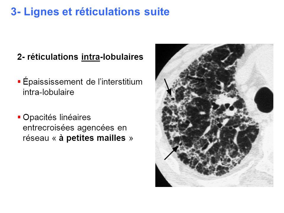 3- Lignes et réticulations suite 2- réticulations intra-lobulaires  Épaississement de l'interstitium intra-lobulaire  Opacités linéaires entrecroisé