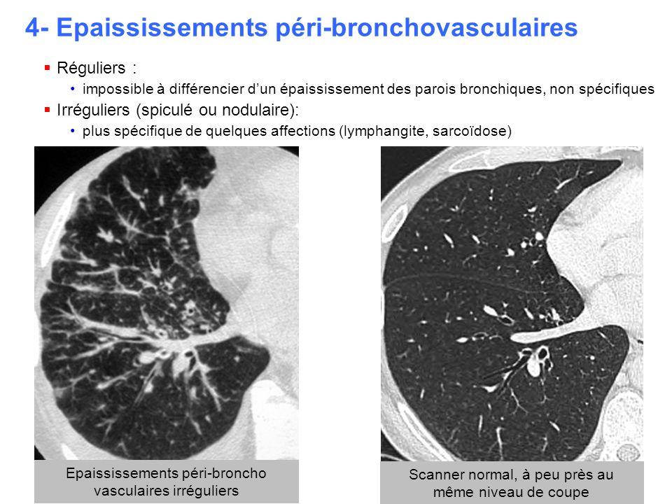 4- Epaississements péri-bronchovasculaires  Réguliers : impossible à différencier d'un épaississement des parois bronchiques, non spécifiques  Irrég