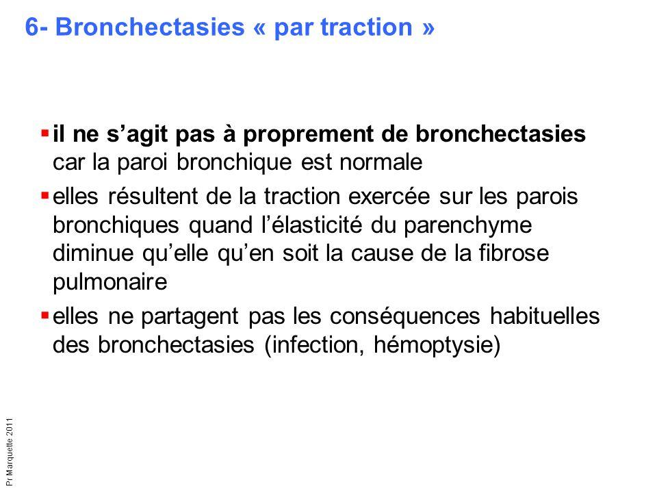 Pr Marquette 2011 6- Bronchectasies « par traction »  il ne s'agit pas à proprement de bronchectasies car la paroi bronchique est normale  elles rés