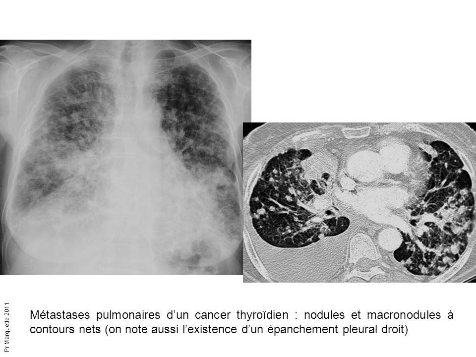 Pr Marquette 2011 Métastases pulmonaires d'un cancer thyroïdien : nodules et macronodules à contours nets (on note aussi l'existence d'un épanchement
