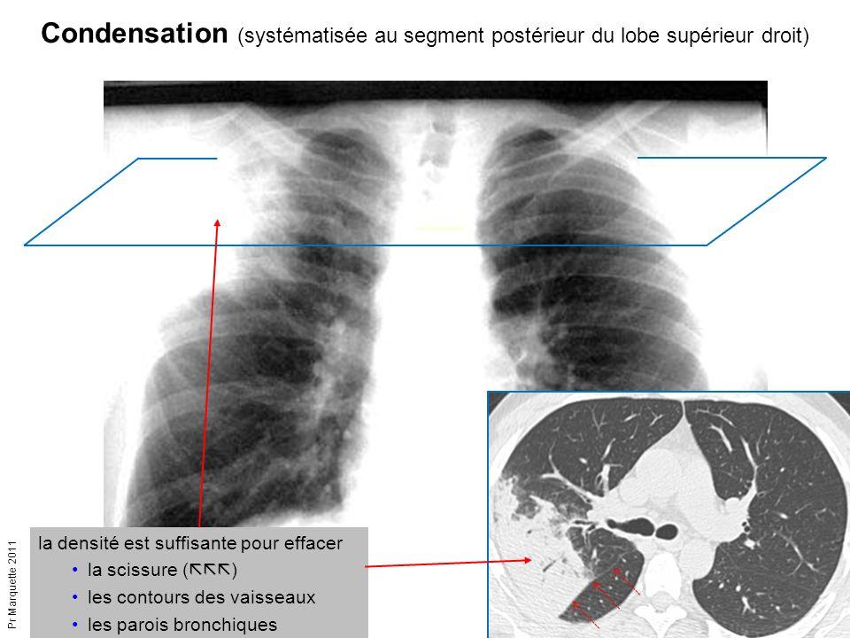 Pr Marquette 2011 la densité est suffisante pour effacer la scissure (  ) les contours des vaisseaux les parois bronchiques Condensation (systémati