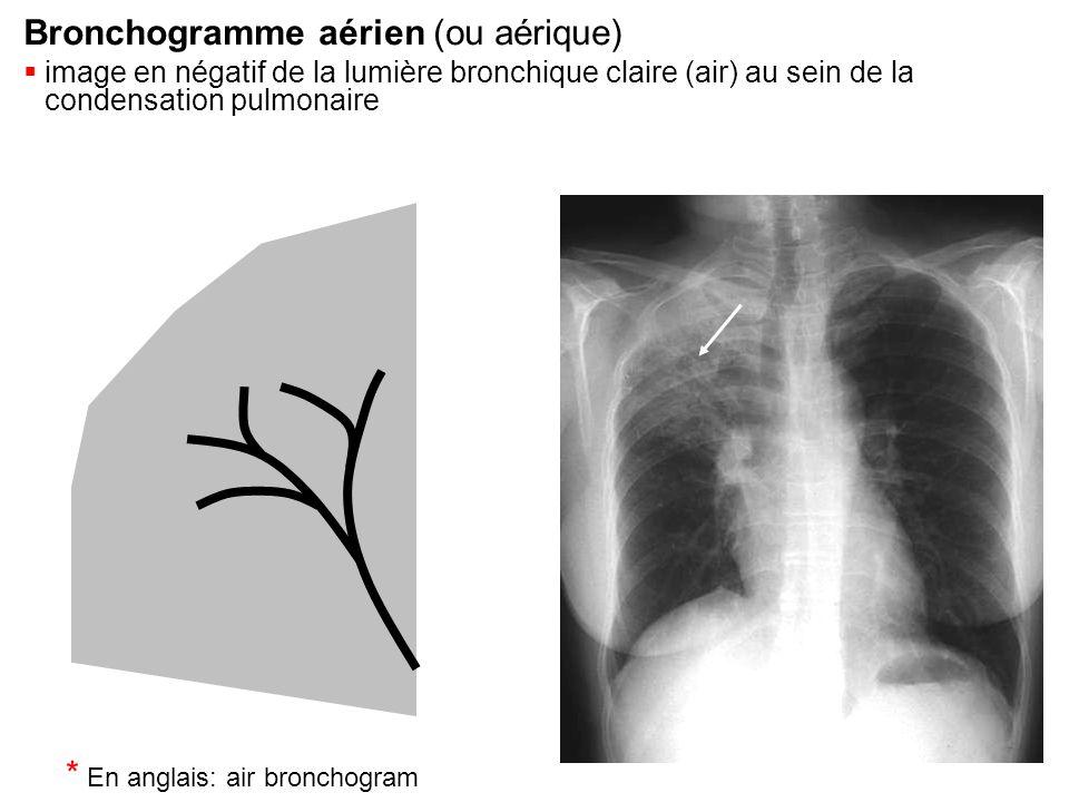 Condensation  Systématisée (lobe inférieur gauche)  effaçant les vaisseaux et les parois bronchiques  limité par la grande scissure (flèche)  contenant un bronchogramme aérien (*) Bronchogramme aérien * * * * * * * * *