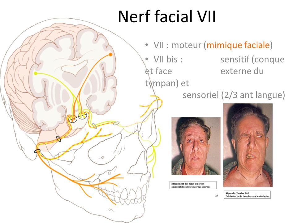 Nerf facial VII VII : moteur (mimique faciale) VII bis : sensitif (conque et face externe du tympan) et sensoriel (2/3 ant langue)