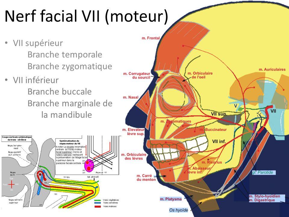 Nerf facial VII (moteur) VII supérieur Branche temporale Branche zygomatique VII inférieur Branche buccale Branche marginale de la mandibule