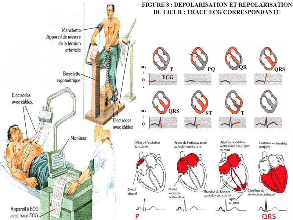 08/01/2008Dr. ABDALLAH - Appareil circulatoire55 P QRS