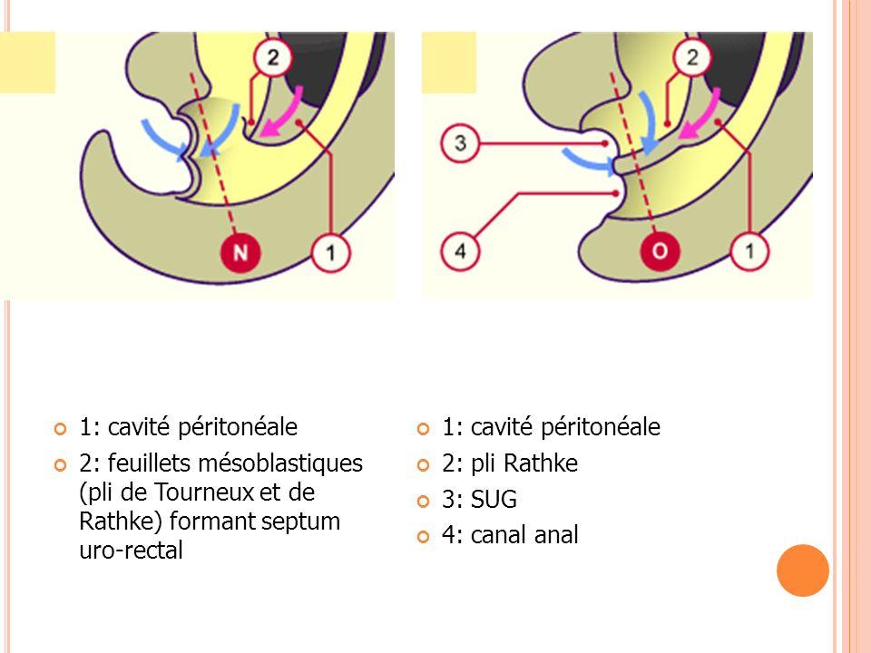 1: cavité péritonéale 2: feuillets mésoblastiques (pli de Tourneux et de Rathke) formant septum uro-rectal 1: cavité péritonéale 2: pli Rathke 3: SUG