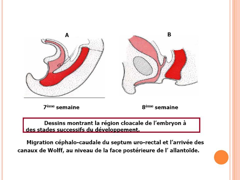 VOIES URINAIRES BASSES Le sinus urogénital est à l origine de la vessie et de l urètre pelvien Le septum uro-rectal va partager la membrane cloacale en deux membranes : urogénitale (ventral) anale (dorsal) Ces deux membranes vont se résorber à l instar de la membrane pharyngienne, pour former respectivement l orifice urogénital et anal.