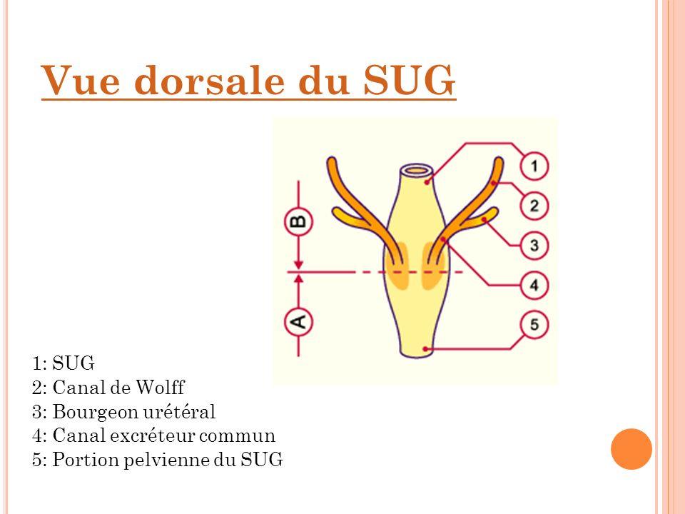 Vue dorsale du SUG 1: SUG 2: Canal de Wolff 3: Bourgeon urétéral 4: Canal excréteur commun 5: Portion pelvienne du SUG