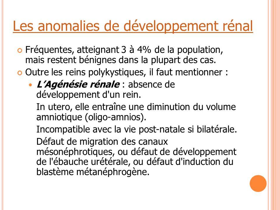 Les anomalies de développement rénal Fréquentes, atteignant 3 à 4% de la population, mais restent bénignes dans la plupart des cas. Outre les reins po