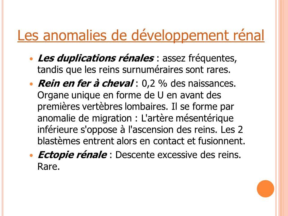 Les anomalies de développement rénal Les duplications rénales : assez fréquentes, tandis que les reins surnuméraires sont rares. Rein en fer à cheval