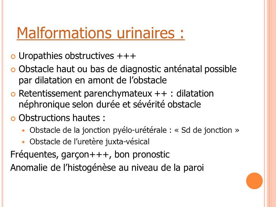 Malformations urinaires : Uropathies obstructives +++ Obstacle haut ou bas de diagnostic anténatal possible par dilatation en amont de l'obstacle Rete