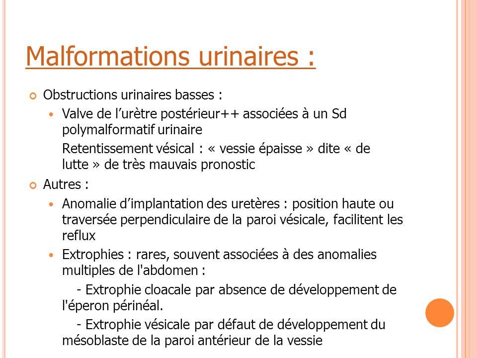 Malformations urinaires : Obstructions urinaires basses : Valve de l'urètre postérieur++ associées à un Sd polymalformatif urinaire Retentissement vés