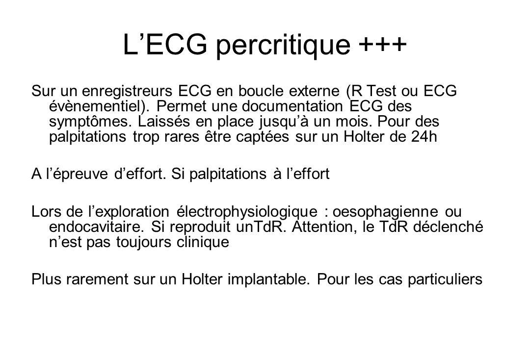 L'ECG percritique +++ Sur un enregistreurs ECG en boucle externe (R Test ou ECG évènementiel).