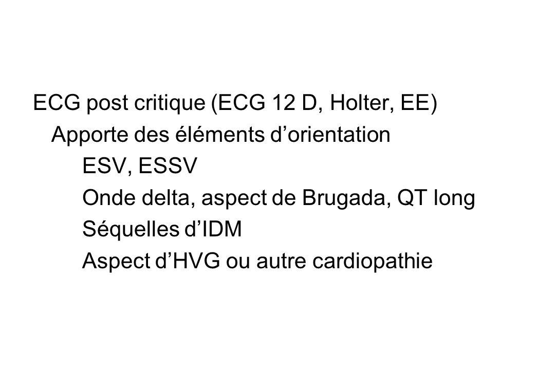 ECG post critique (ECG 12 D, Holter, EE) Apporte des éléments d'orientation ESV, ESSV Onde delta, aspect de Brugada, QT long Séquelles d'IDM Aspect d'HVG ou autre cardiopathie