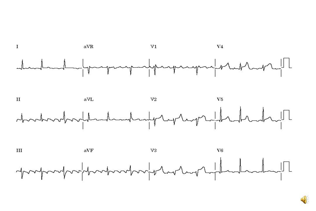 Arythmies associées La FA peut survenir de façon isolée ou être associée à un flutter auriculaire (spontané ou favorisé par AA) Le flutter = activité auriculaire en «dents de scie ou toit d'usine» (environ 300 par min) visible en II, III et aVF, sans ligne isoélectrique entre ces déflections D'autres tachycardies auriculaires ou jonctionnelles peuvent alterner avec la FA.
