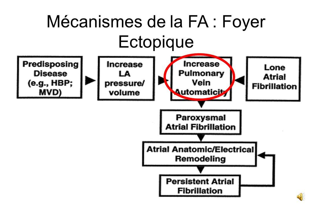 Mécanismes 2 mécanismes - foyers ectopiques surtout dans les VP - re-entrées : avec propagation d'ondes dont le nombre, les durées et les extensions dépendent de l'état des oreillettes Le « remodelage » auriculaire entretien la FA.