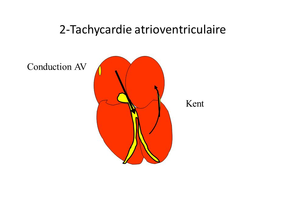 Kent Conduction AV 2-Tachycardie atrioventriculaire