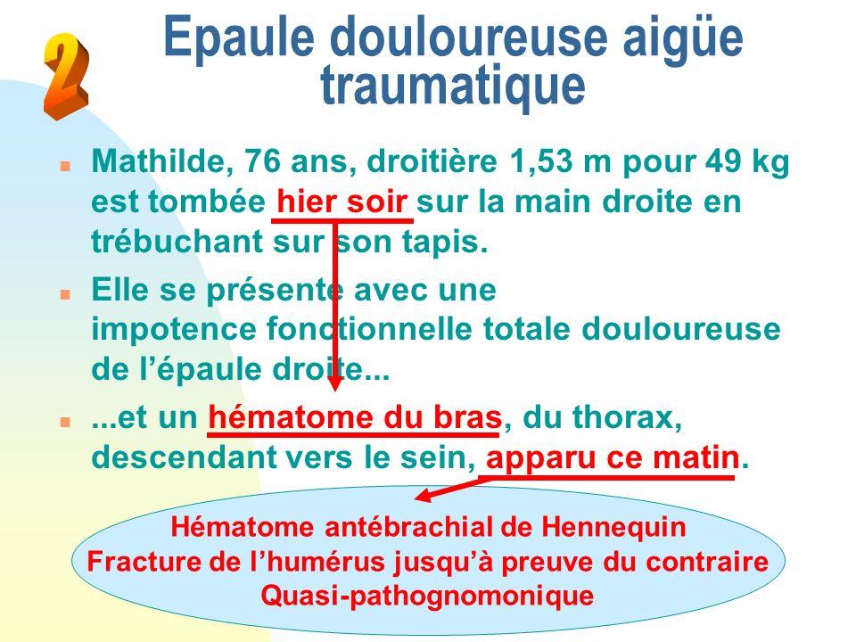 Epaule douloureuse aigüe traumatique n Mathilde, 76 ans, droitière 1,53 m pour 49 kg est tombée hier soir sur la main droite en trébuchant sur son tap