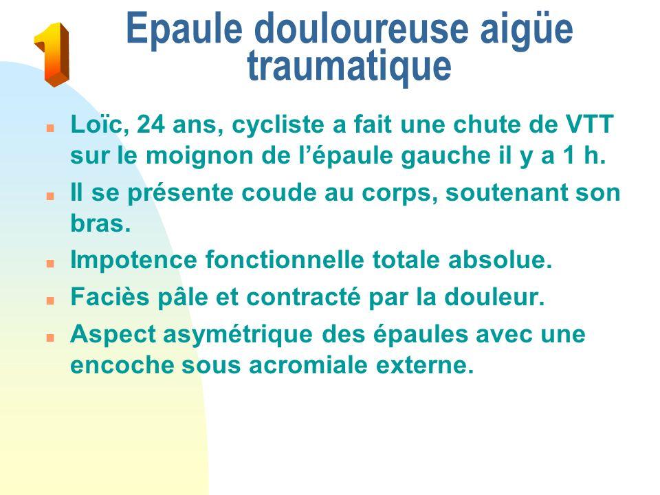 Epaule douloureuse aigüe traumatique n Loïc, 24 ans, cycliste a fait une chute de VTT sur le moignon de lépaule gauche il y a 1 h.