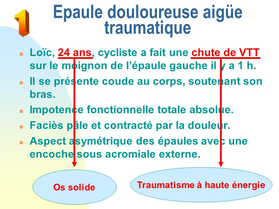 Epaule douloureuse aigüe traumatique n A faire… u Examen clinique F Instabilité vraie F Luxation récidivante u Bilan radio = NORMAL u I.R.M.
