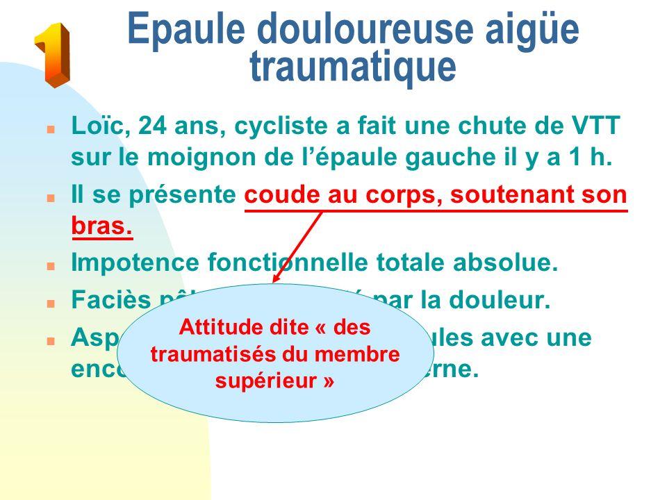 Epaule douloureuse aigüe traumatique n Loïc, 24 ans, cycliste a fait une chute de VTT sur le moignon de lépaule gauche il y a 1 h. n Il se présente co